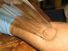 Sampling skin odor from subject's forearm (Monell Chemical Senses Center, Philadelphia)