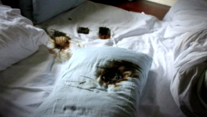 Cellphone burns a hole through teen's pillow as sh