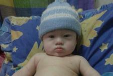 Baby Gammy