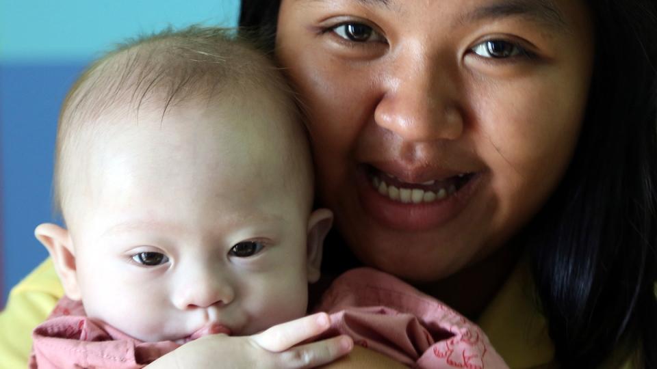 In this photo taken Aug. 3, 2014, Thai surrogate mother Pattaramon Chanbua poses with Gammy in Sri Racha, Chonburi, Thailand. (AP / Apichart Weerawong)