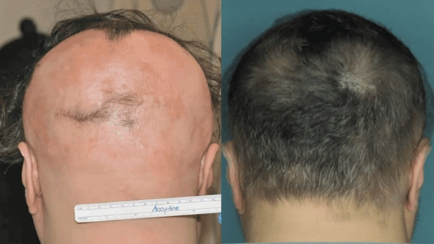 Treatment for hair-destroying disease
