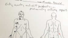 Michael Brown was shot 6 times: autopsy