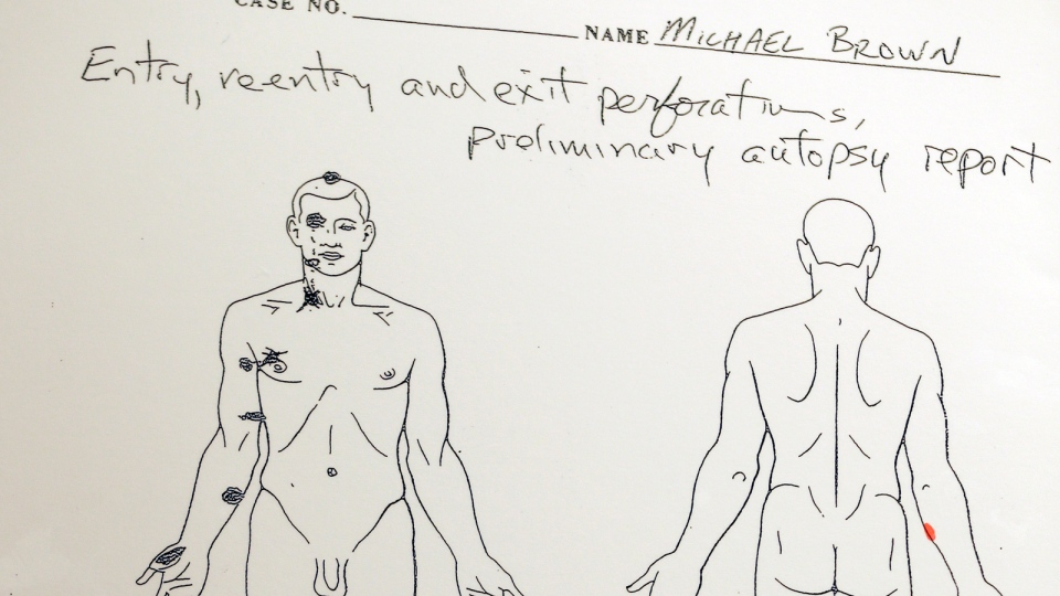 A diagram is shown during a news conference held to share preliminary results of a second autopsy on Michael Brown in St. Louis County, Mo., Monday, Aug. 18, 2014. (AP /Jeff Roberson)