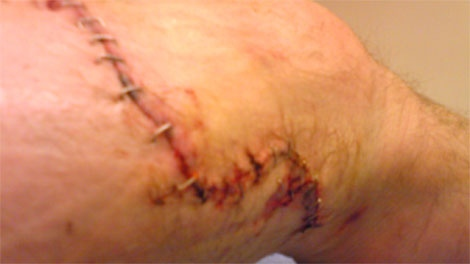 The Pivot Legal Society has released images of wounds allegedly caused by a Vancouver Police Department service dog. Jan. 25, 2012. (Handout)