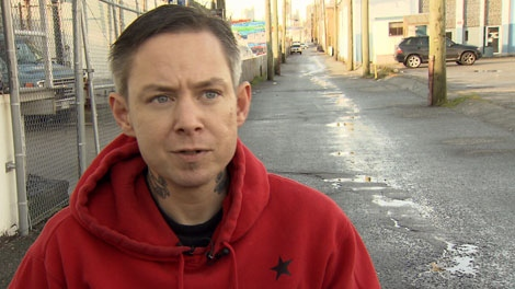Chirs Evans is suing the city after he was severely bitten by a Vancouver police dog. Jan. 26, 2012. (CTV)