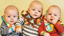 Triplets battle rare form of cancer