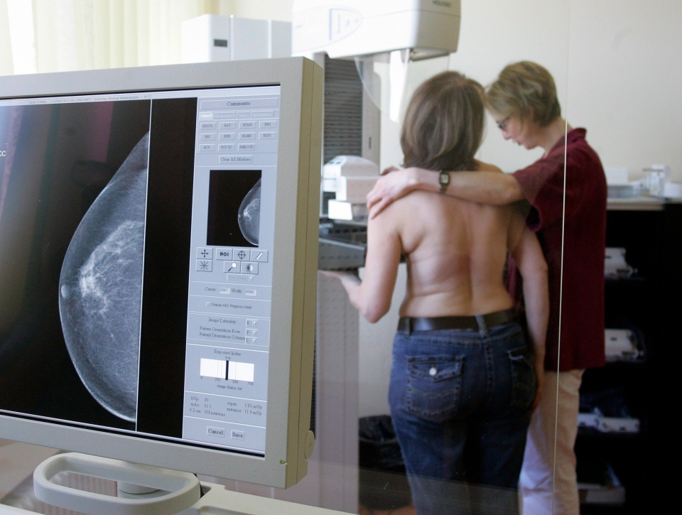 An X-ray technician and an assistant demonstrate a mammogram screening program in Berlin. (AP / Franka Bruns)