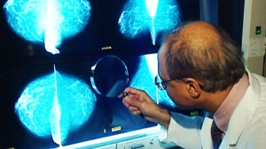 CTV National News:  Best options for breast cancer