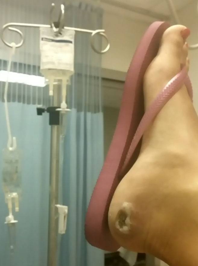 Kristine Galka's infected foot is shown at St. Joseph's Health Centre.