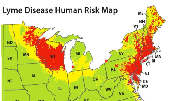 New map pinpoints eastern U.S. Lyme disease risk areas | CTV News