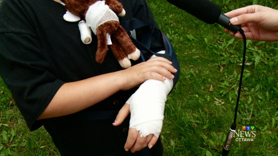 Chloe was playing in a backyard in Ottawa's south end when the dog, a dogo Argentino, suddenly lunged at her and bit her arm and back.