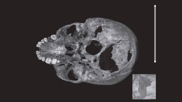 This undated photo issued on Wednesday Sept. 17, 2014 shows a scan showing injuries to the skull of King Richard III, the inset image shows close up of injury. (University of Leicester)