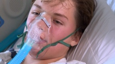Child in US hospital with respiratory virus