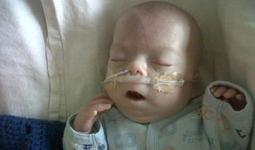 Braedon Louiser-Hicks was born prematurely and has had a number of blood transfusions.