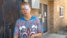 Teen stabbed in the eye by a senior