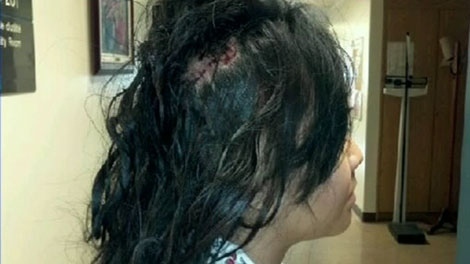 Vina Jayphait Was Attacked From Behind As She Walking John Abbott College To The
