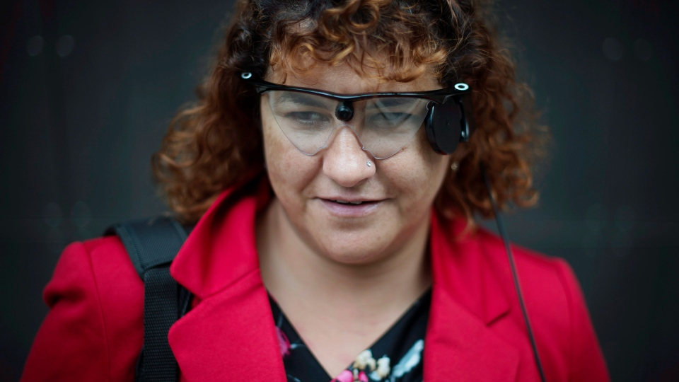 Orly Shamir, a credit analyst, wears the Argus Retinal Prosthesis System (Argus II) while posing in Toronto on Tuesday, Oct. 14, 2014. (Darren Calabrese / THE CANADIAN PRESS)