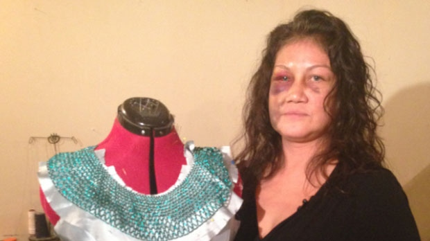 Lana Sinclair is a designer who makes clothes, jewelry and art pieces. She says a misunderstanding over an incident at her home led a Winnipeg police officer to overreact and assault her.