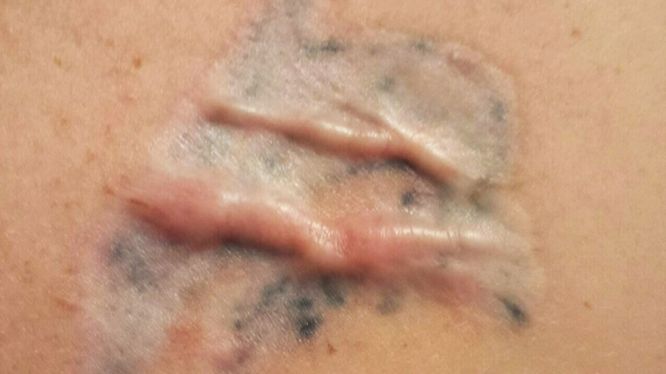 Montreal woman claims tattoo-removal treatment resulted in 2nd-degree ...