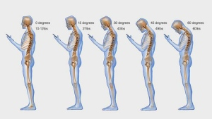 The weight on by the spine increases when bending the neck at varying degrees. (Dr. Ken Hansraj)