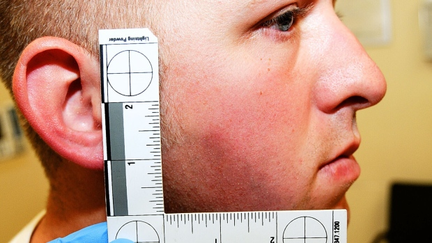 Ferguson police officer Darren Wilson is seen during his medical examination after he fatally shot Michael Brown in Ferguson, Mo. in this undated photo released as part of the grand jury evidence by the St. Louis County Prosecuting Attorney's office on Monday, Nov. 24, 2014. (St. Louis County Prosecuting Attorney's Office)