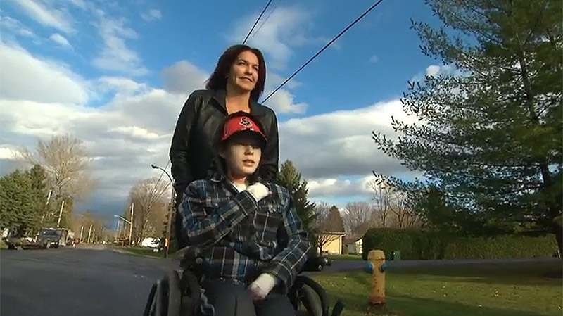 Jonathan Pitre lives with Epidermolysis bullos