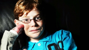 Jonathan Pitre is seen as a 'Butterfly Child' because his condition leaves his skin as fragile as butterfly wings.