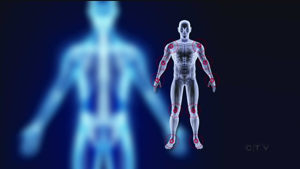 Bioelectronics are implantable devices that offer hope not just to rheumatoid arthritis patients, but to others with inflammatory and auto-immune disorders.