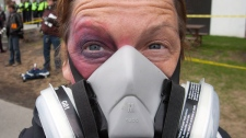 A protester sports a fake black eye and a mask during a demonstration against tuition fee hikes, Thursday, April 26, 2012 in Montreal. (Ryan Remiorz / THE CANADIAN PRESS)