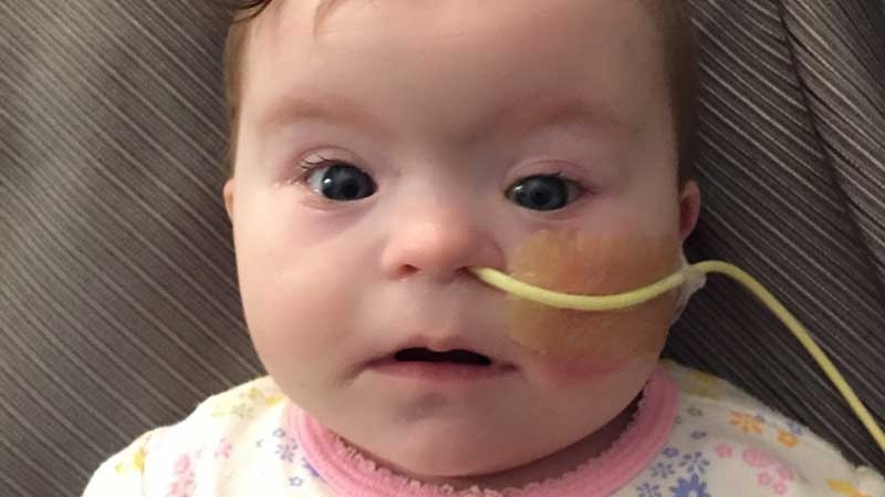 Penticton baby Jolene Amy is on dialysis after going into cardiac arrest and suffering liver and kidney damage. (CTV)