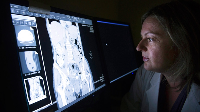 Dr. Rachel Kupets, surgical oncologist for Sunnybrook's Odette Cancer Centre Gynaecology Cancer Care team, looks at a CT scan in Toronto on Wednesday, June 1, 2011. (Nathan Denette / THE CANADIAN PRESS)