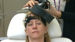 Gail Bellissimo is shown undergoing theta-burst treatment, used to treat depression.