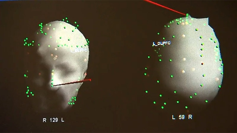 A monitor shows the stimulation points involved with theta-burst treatment.