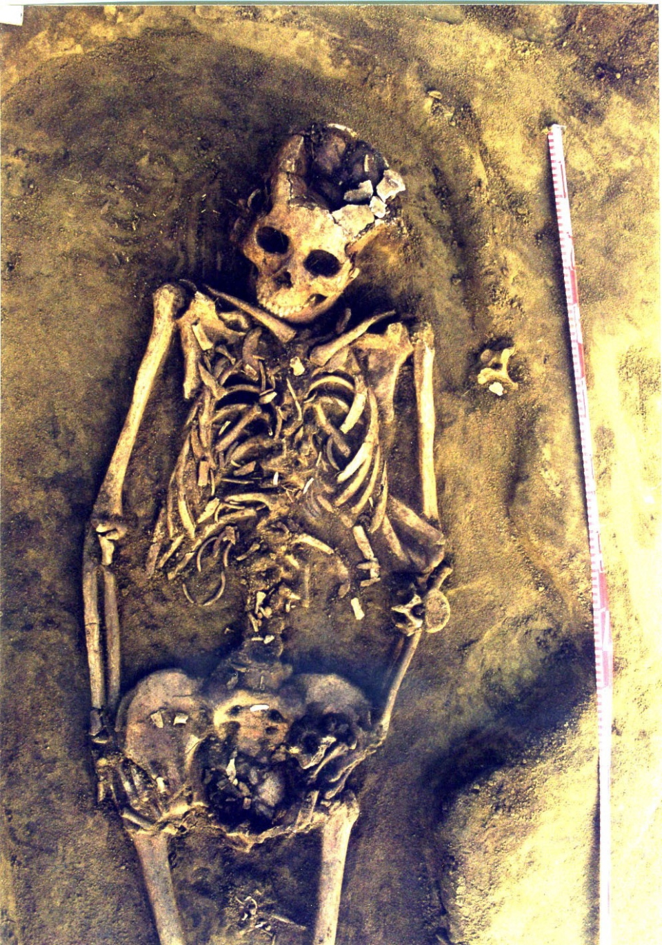 Canadian Finds 7 700 Year Old Skeletons Of Twins In