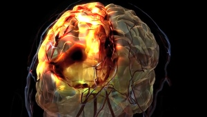 This image released by Alberta Innovates-Health Solutions shows a stroke simulation in the brain.