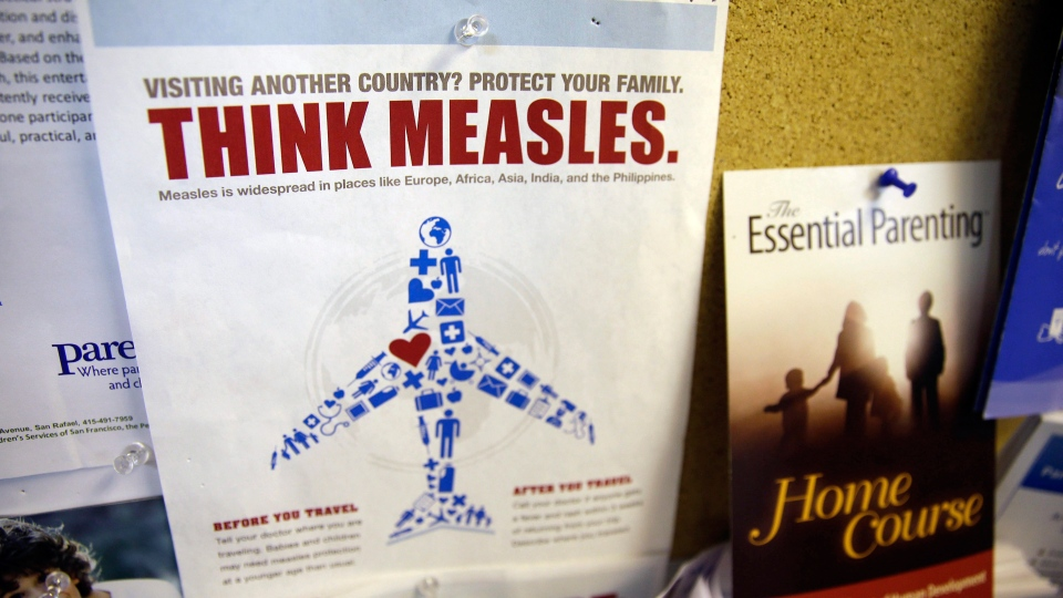 A flyer educating parents about measles is displayed on a bulletin board at the Tamalpais Pediatrics clinic in Greenbrae, Calif., Friday, Feb. 6, 2015. (AP / Eric Risberg)