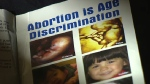 The University of Alberta group Go Life plans to hand out pamphlets during a pro-life demonstration on campus next week.