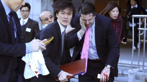 U.S. Ambassador to South Korea Mark Lippert, front right, leaves a lecture hall for a hospital after being attacked by a man in Seoul, South Korea, Thursday, March 5, 2015. (AP / Yonhap, Kim Ju-Sung)