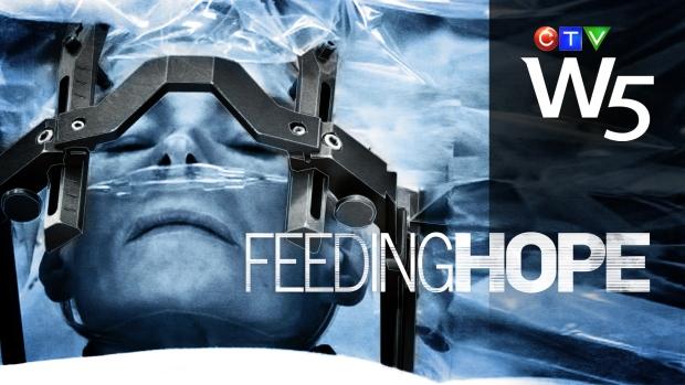 W5 Feeding Hope