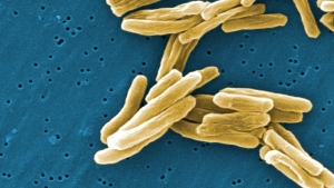 The Mycobacterium tuberculosis (TB) bacteria is shown in a 2006 high magnification scanning electron micrograph (SEM) image. (CDC / Janice Carr)