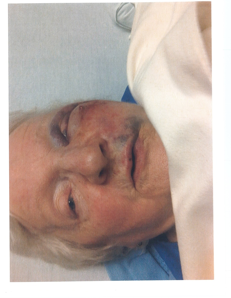 Helen Fulton, according to her children, was beaten and choked at a long-term care facility. (Submitted to CTV London)