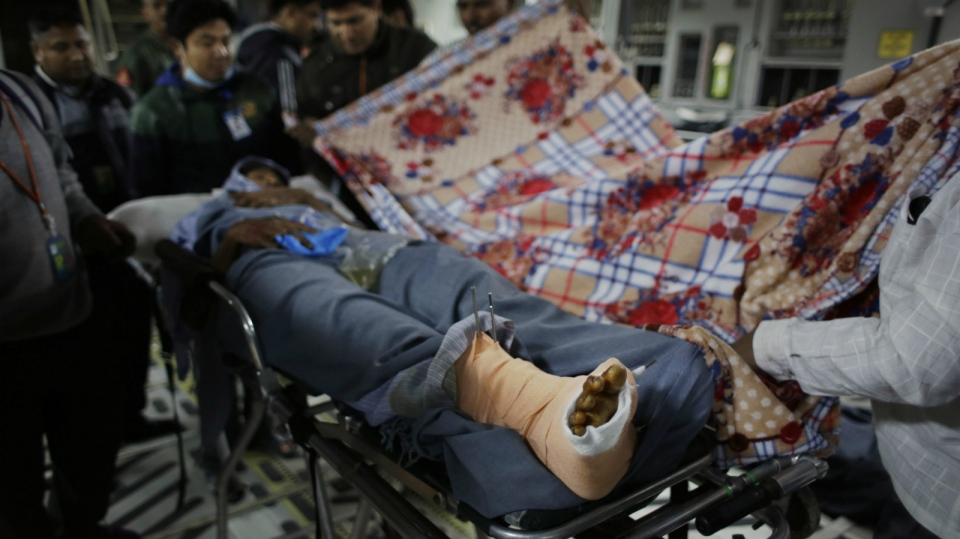 Injured survivor in Nepal