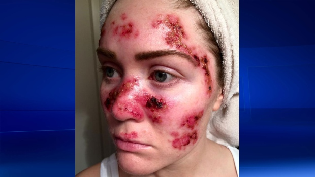Tawny Willoughby selfie of her skin cancer scars