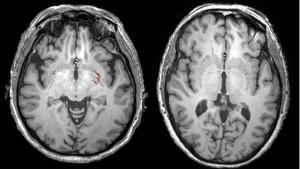 An MRI brain scan. (Dr. Sandra Black / Sunnybrook Health Sciences Centre)