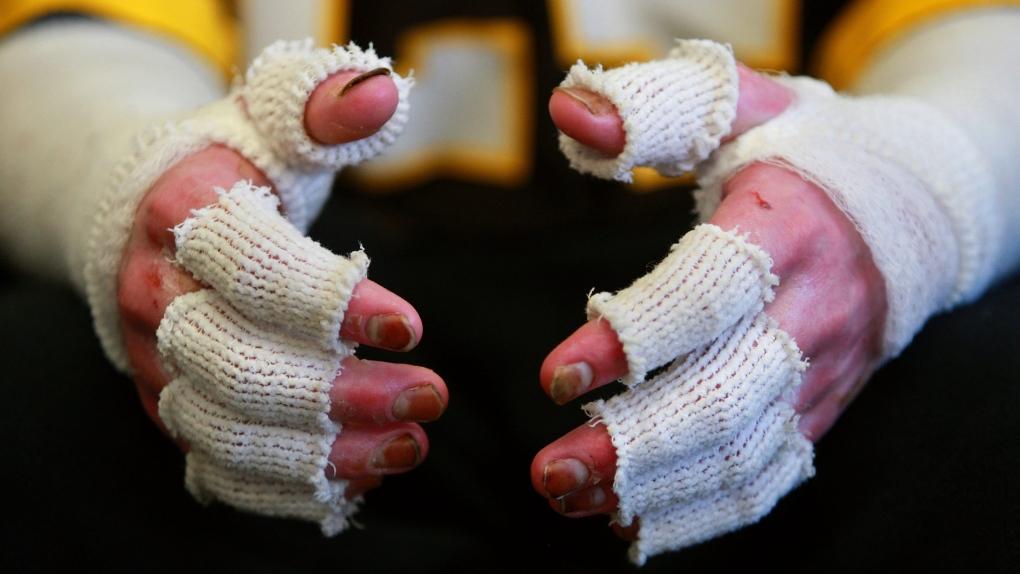 Burn victim's hands