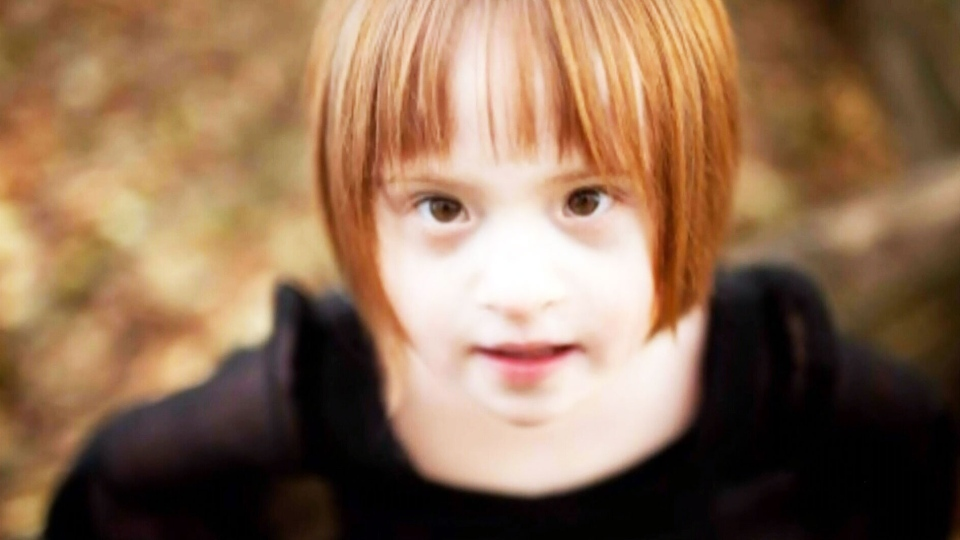 Christie Hoos, of Langley, B.C, is furious and heartbroken after a photo of her daughter, who has Down syndrome, was used by a biomedical company to advertise prenatal genetic screening.