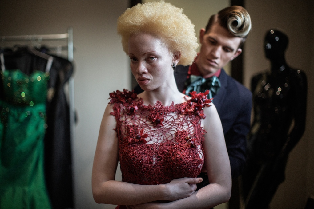 South African Model Thando Hopa Revels In Her Albino Skin Ctv News