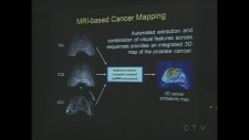 Prostate cancer software