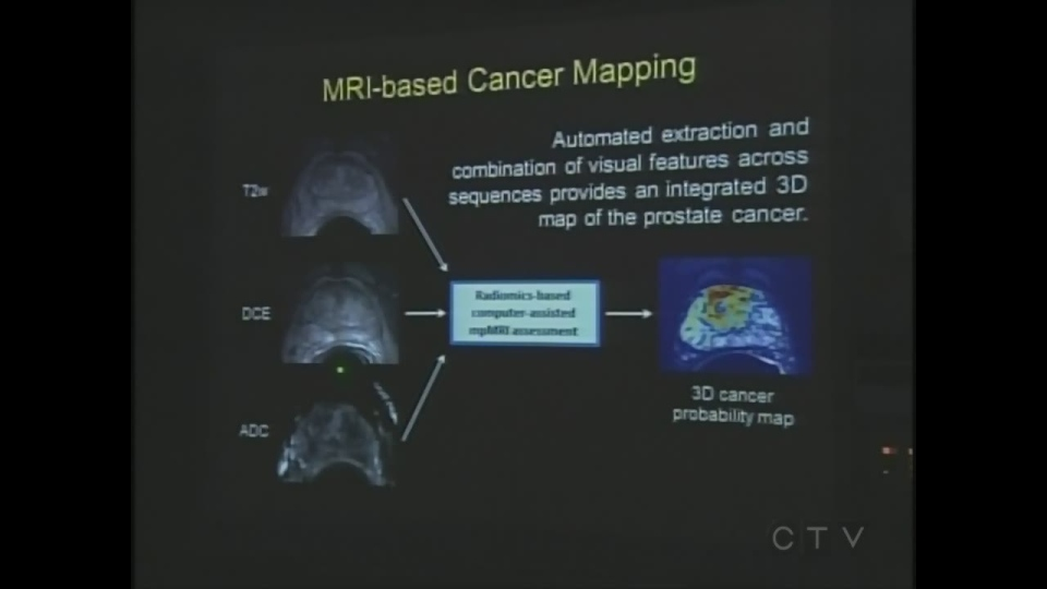 Software to help diagnose and treat prostate cancer is being developed in London, Ont. on Friday, July 3, 2015. (Steve Ward / CTV London)