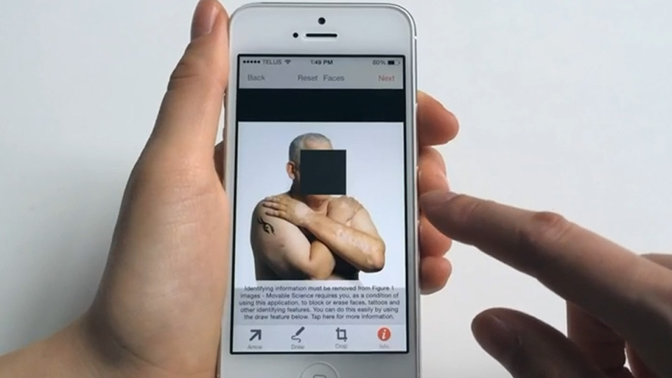 'Figure 1' allows doctors to share photos of conditions they encounter, in hopes that other doctors will be able to offer advice.